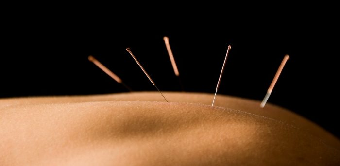 Acupuncture for back pain in Halifax