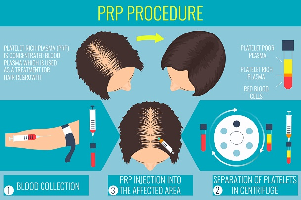 Platelet-rich plasma (PRP) for hair loss