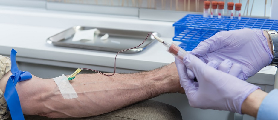 Platelet-rich plasma treatment